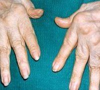 Перші симптоми ревматоїдного артриту
