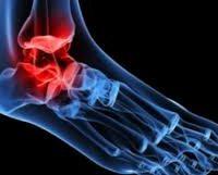 Ускладнення артриту