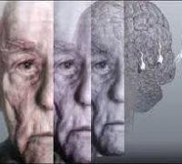 деменцiя прояви