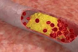діабетична ангіопатія з ураженням капілярів і коронарних артерій серця
