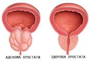 симптоми аденоми простати