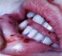 Апластична анемія причини симптоми