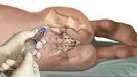 Лікування апластичної анемії трансплантацiя