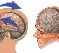 Наслідки забиття головного мозку