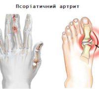 Ознаки псоріатичного артриту