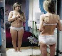 Перші ознаки анорексії у підлітків
