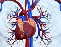 Причини розвитку ішемії серця, нападів стенокардії