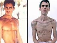 Прояви анорексії у чоловіків