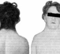 Синдром Шерешевського-Тернера