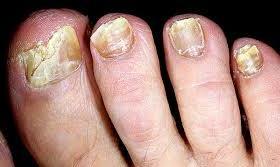 Тотальна дистрофія нігтя