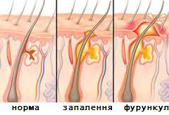 Види фурункульозу
