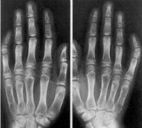 Викривлення пальців