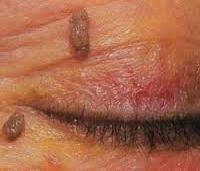 Вірус папіломи на обличчі