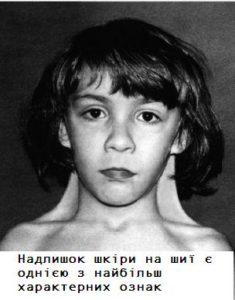 Як виглядають діти з синдромом Шерешевського-Тернера