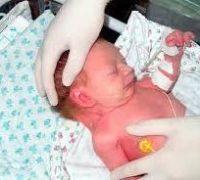 новонароджені з синдромом Шерешевського-Тернера