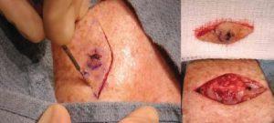 операція з видалення пухлини