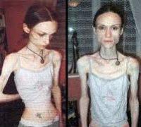 ознаки анорексії у дитини
