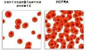 причини залізодефіцитна анемія