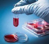 трансплантація стовбурових клітин
