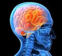 забиття головного мозку наслiдки