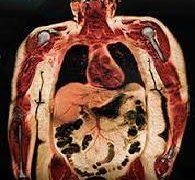 Ожиріння і атеросклероз
