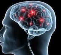 Причини розсіяного склерозу