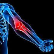 Чому болять лікті і коліна
