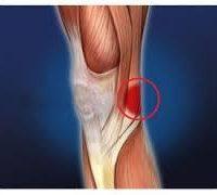 біль під коліном
