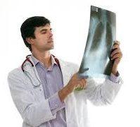 operatsiya-pri-perelomi-reber