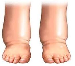 Чому сильно набрякають ноги