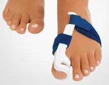 Консервативні методи лікування шишок на ногах