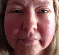 Лікування набряків на обличчі при алергії