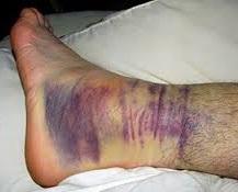 Травматичне ушкодження ніг