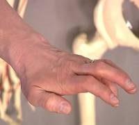 Симптоми невропатії ліктьового нерва