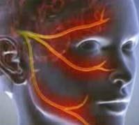 Симптоми невропатії трійчастого нерва