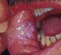 молочниця у чоловіків у роті