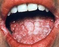 молочниця в роті у чоловіків