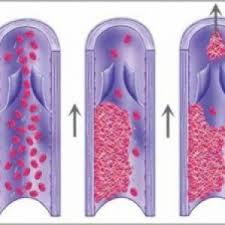 Що таке тромбофілія?